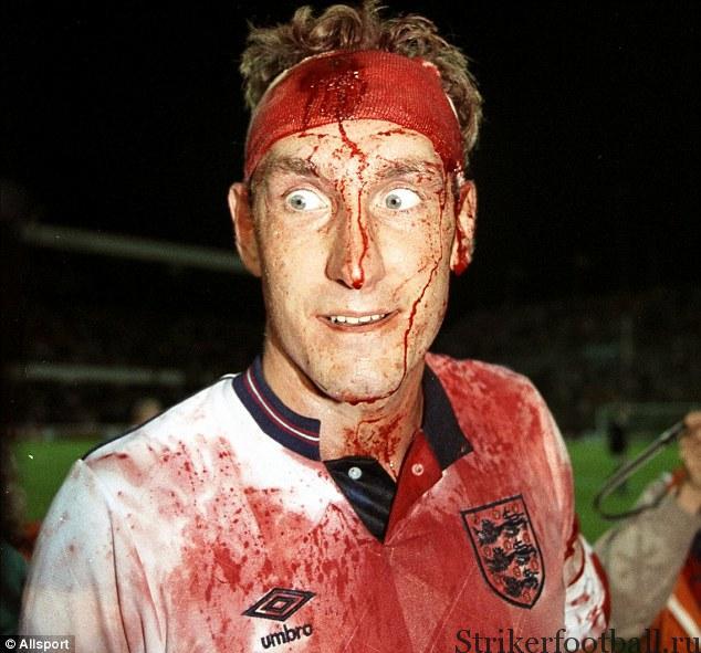 Фотография залитого кровью Терри Бутчера с повязкой на голове дает понимание его мужества на футбольном поле.